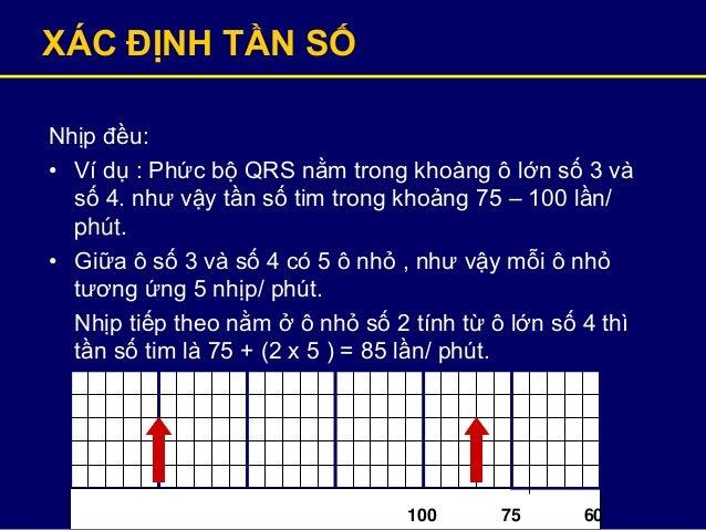 XÁC ĐỊNH TẦN SỐ Nhịp đều: • Ví dụ : Phức bộ QRS nằm trong khoàng ô lớn số 3 và số 4. như vậy tần số tim trong khoảng 75 – ...