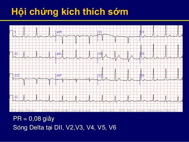 Hội chứng kích thích sớm PR = 0,08 giây Sóng Delta tại DII, V2,V3, V4, V5, V6