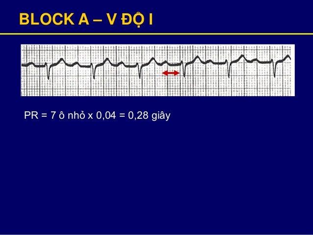 BLOCK A – V ĐỘ I PR = 7 ô nhỏ x 0,04 = 0,28 giây