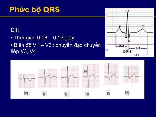 Phức bộ QRS DII: • Thời gian 0,08 – 0,12 giây • Biên độ V1 – V6 : chuyển đạo chuyển tiếp V3, V4