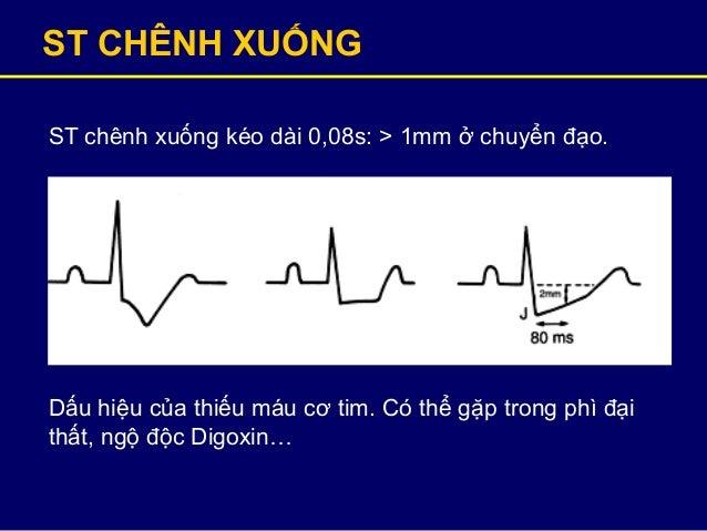 ST CHÊNH XUỐNG ST chênh xuống kéo dài 0,08s: > 1mm ở chuyển đạo. Dấu hiệu của thiếu máu cơ tim. Có thể gặp trong phì đại t...