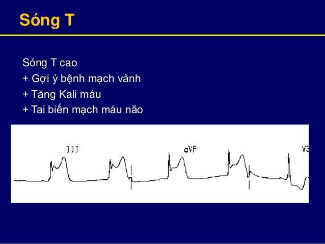 Sóng T Sóng T cao + Gợi ý bệnh mạch vành + Tăng Kali máu + Tai biến mạch máu não