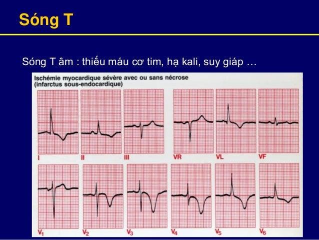 Sóng T Sóng T âm : thiếu máu cơ tim, hạ kali, suy giáp …