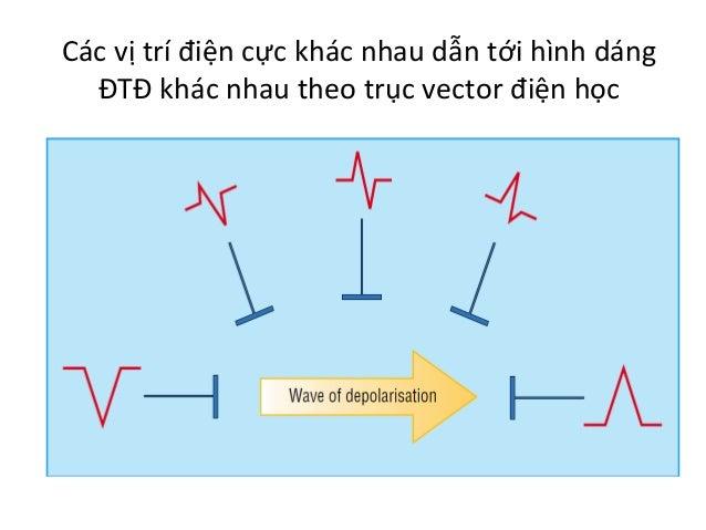 Các  vị  trí  điện  cực  khác  nhau  dẫn  tới  hình  dáng   ĐTĐ  khác  nhau  theo  trục  v...