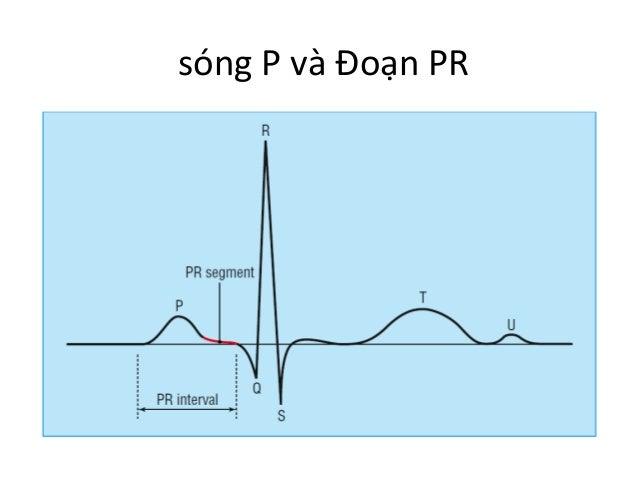 sóng  P  và  Đoạn  PR