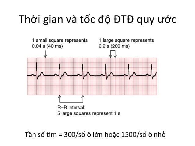 Thời  gian  và  tốc  độ  ĐTĐ  quy  ước   Tần  số  Im  =  300/số  ô  lớn  hoặc  1500/số  ...