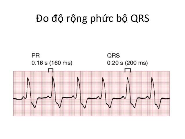 Đo  độ  rộng  phức  bộ  QRS