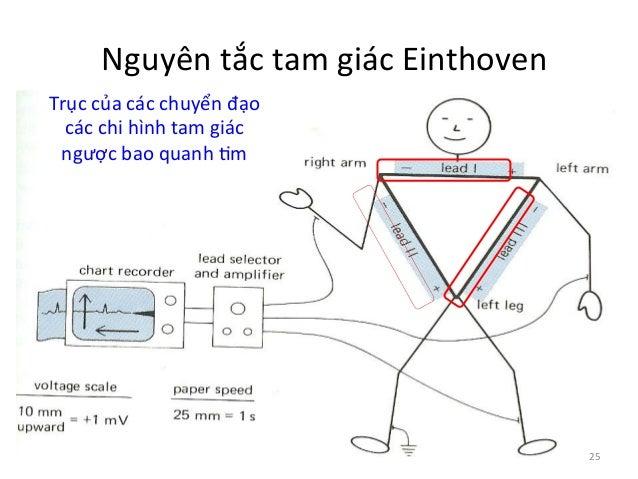 Nguyên  tắc  tam  giác  Einthoven     Trục  của  các  chuyển  đạo   các  chi  hình  tam  giá...