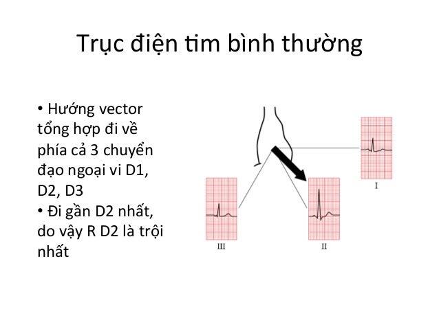 Trục  điện  Im  bình  thường   •  Hướng  vector   tổng  hợp  đi  về   phía  cả  3  chuyển ...