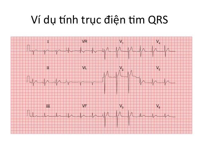 Ví  dụ  Pnh  trục  điện  Im  QRS