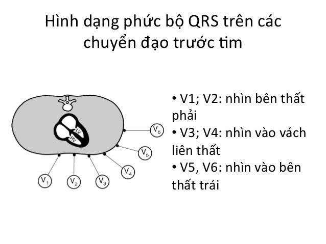 Hình  dạng  phức  bộ  QRS  trên  các   chuyển  đạo  trước  Im   •  V1;  V2:  nhìn  bên  t...