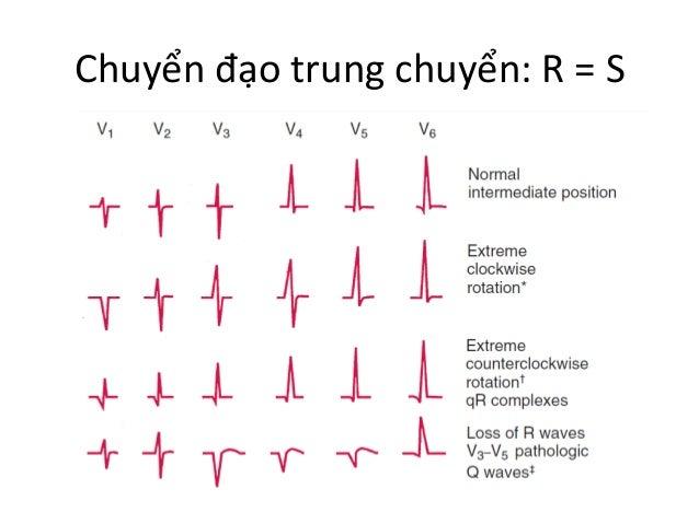 Chuyển  đạo  trung  chuyển:  R  =  S