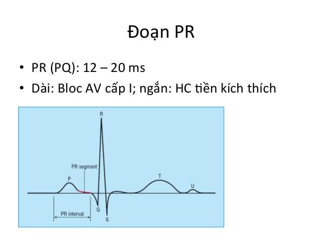 Đoạn  PR   • PR  (PQ):  12  –  20  ms   • Dài:  Bloc  AV  cấp  I;  ngắn:  HC  Iền  kích...