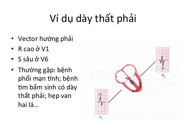 Ví  dụ  dày  thất  phải   • Vector  hướng  phải   • R  cao  ở  V1   • S  sâu  ở  V6   •...