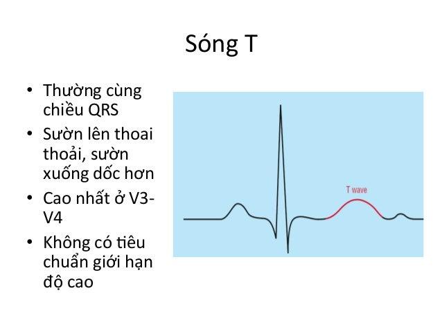 Sóng  T   • Thường  cùng   chiều  QRS   • Sườn  lên  thoai   thoải,  sườn   xuống  dốc  hơn  ...