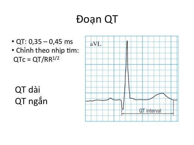 Đoạn  QT   •  QT:  0,35  –  0,45  ms   •  Chỉnh  theo  nhịp  Im:     QTc  =  QT/RR1/2  ...