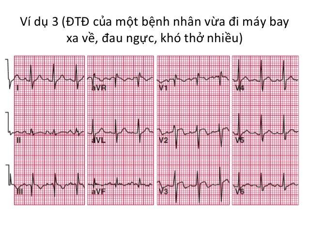 Ví  dụ  3  (ĐTĐ  của  một  bệnh  nhân  vừa  đi  máy  bay   xa  về,  đau  ngực,  khó  thở...