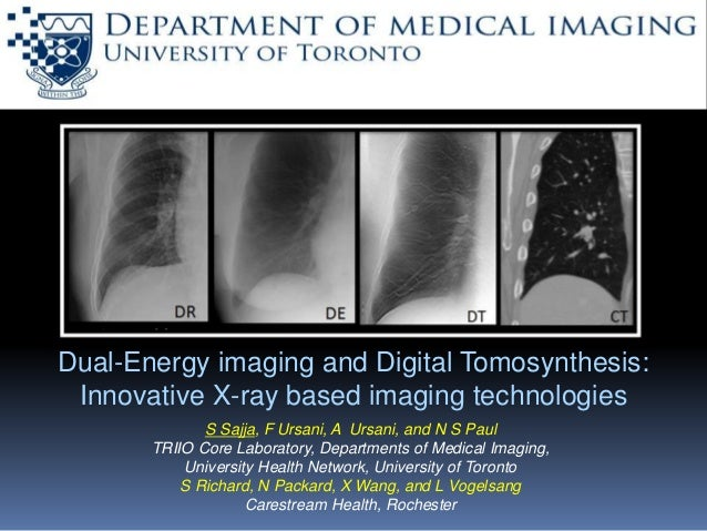 x ray tomosynthesis
