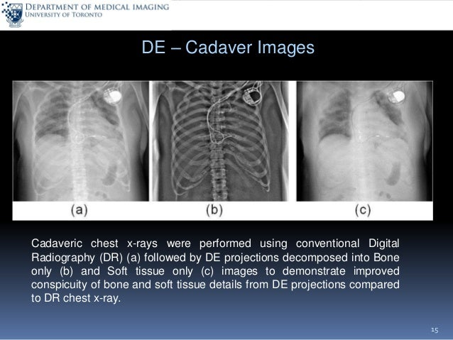 x ray tomosynthesis Tomosynthesis differs from ct technology in that significantly fewer x-ray beams are projected through the breast than with ct and the x-ray exposure to the rest of the chest is dramatically reduced hence, the radiation dose delivered to the breast by tomosynthesis is similar to that delivered 2d mammography.