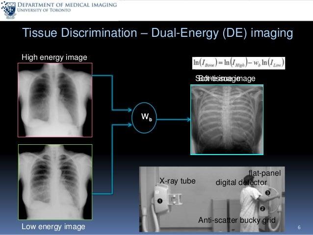 https://image.slidesharecdn.com/dualenergyimaginganddigitaltomosynthesis-160314202602/95/dual-energy-imaging-and-digital-tomosynthesis-innovative-xray-based-imaging-technologies-6-638.jpg?cb\u003d1458217273