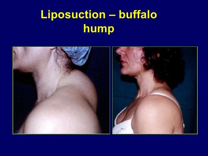 Liposuction – buffalo hump