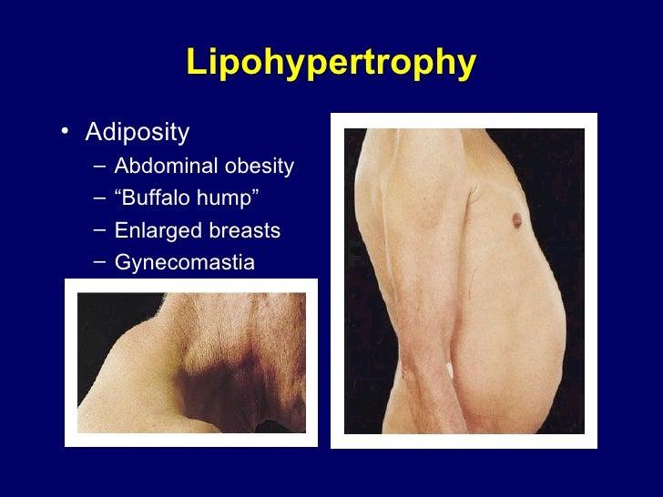 """Lipohypertrophy <ul><li>Adiposity </li></ul><ul><ul><li>Abdominal obesity </li></ul></ul><ul><ul><li>"""" Buffalo hump"""" </li>..."""