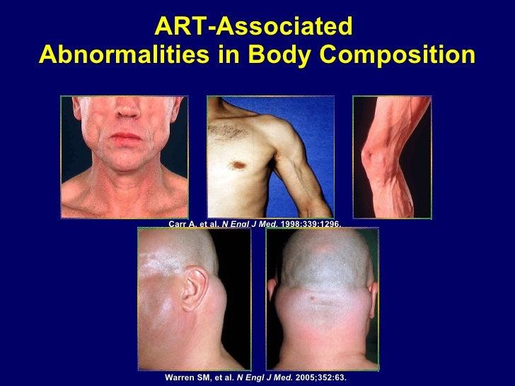 ART-Associated  Abnormalities in Body Composition Carr A, et al.  N Engl J Med.  1998;339:1296.  Warren SM, et al.  N Engl...