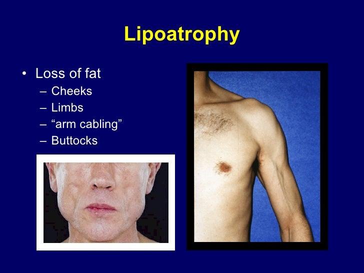 """Lipoatrophy <ul><li>Loss of fat </li></ul><ul><ul><li>Cheeks </li></ul></ul><ul><ul><li>Limbs </li></ul></ul><ul><ul><li>""""..."""