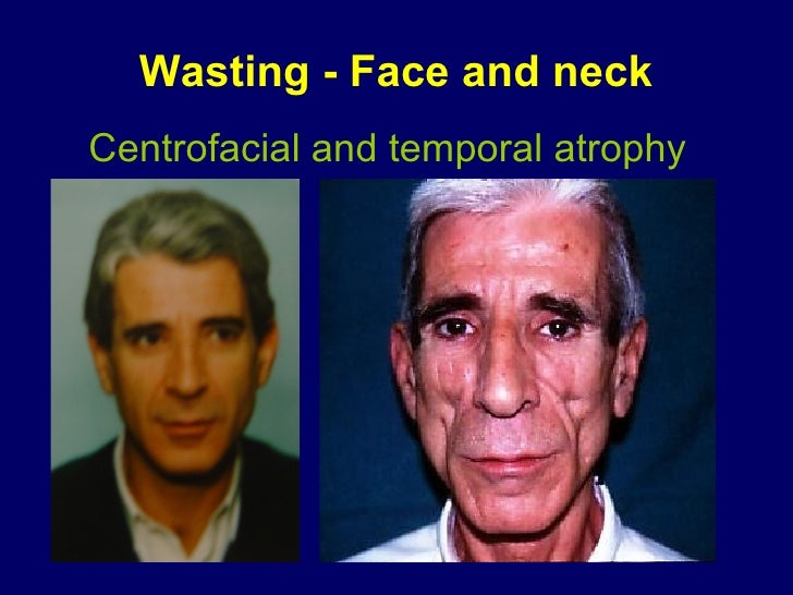 Wasting - Face and neck Centrofacial and temporal atrophy