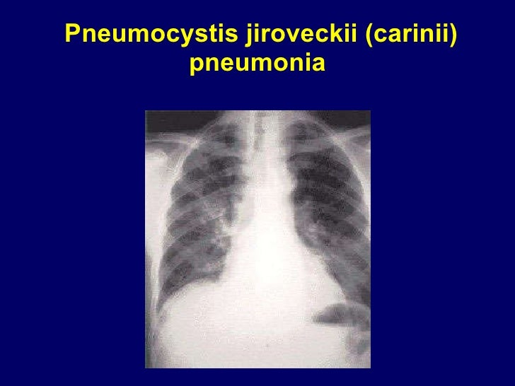 Pneumocystis jiroveckii (carinii) pneumonia