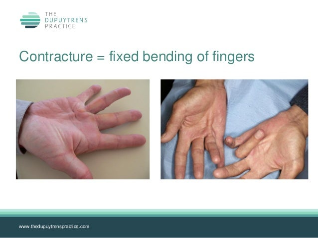 Complete loss of hyperextension; 6. ...  sc 1 st  SlideShare & Dupuytrens background info