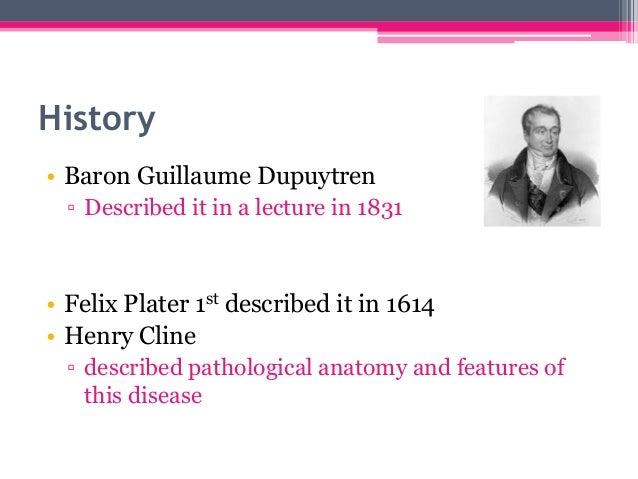 Dupuytren's disease Slide 2