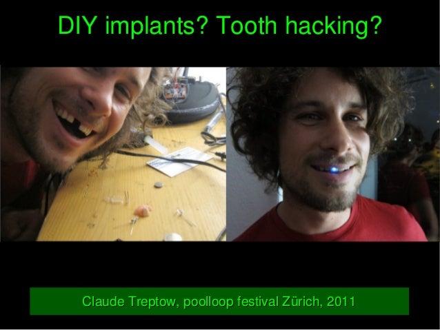 DIYimplants?Toothhacking?DIYimplants?Toothhacking? ClaudeTreptow,poolloopfestivalZürich,2011ClaudeTreptow,poo...
