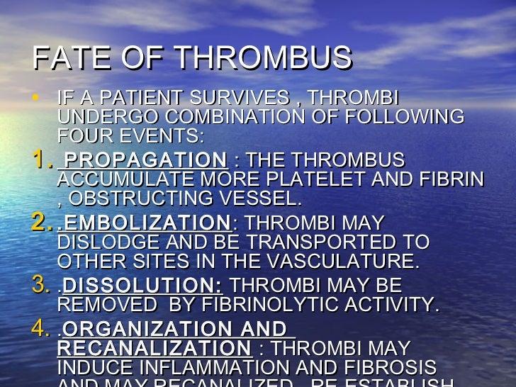 Dvt for Atrial mural thrombus