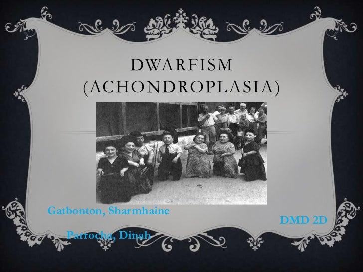 DWARFISM      (ACHONDROPLASIA)Gatbonton, Sharmhaine                        DMD 2D   Parrocha, Dinah