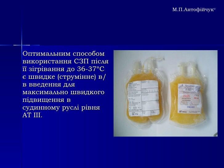 Синдром ДВЗ крові в практиці лікаря-інтерніста