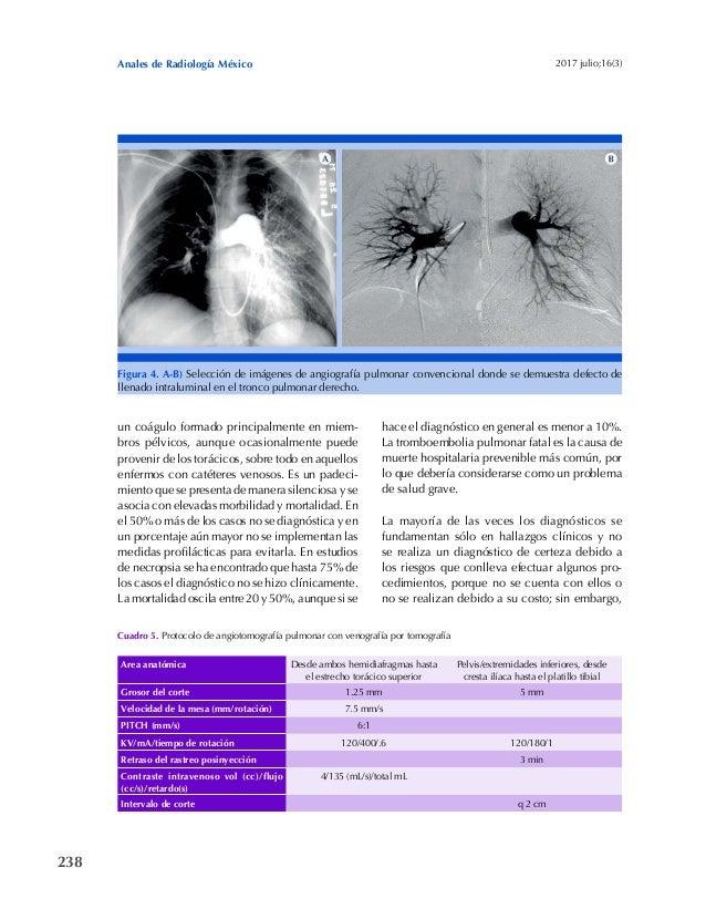 238 Anales de Radiología México 2017 julio;16(3) un coágulo formado principalmente en miem- bros pélvicos, aunque ocasiona...