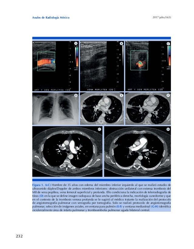 232 Anales de Radiología México 2017 julio;16(3) Figura 1. A-C) Hombre de 35 años con edema del miembro inferior izquierdo...
