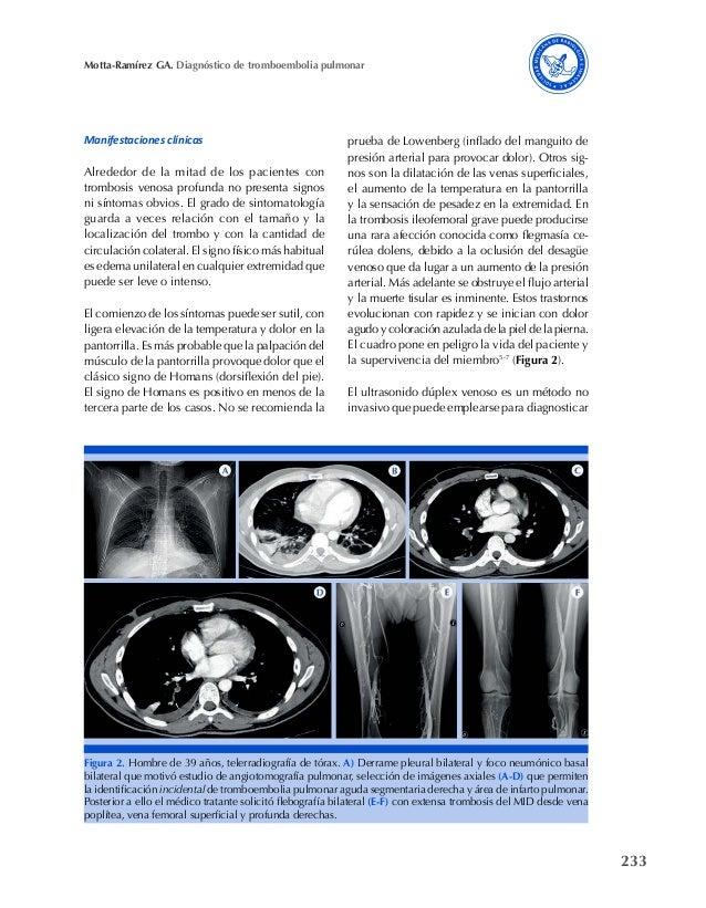 233 Motta-Ramírez GA. Diagnóstico de tromboembolia pulmonar Manifestaciones clínicas Alrededor de la mitad de los paciente...