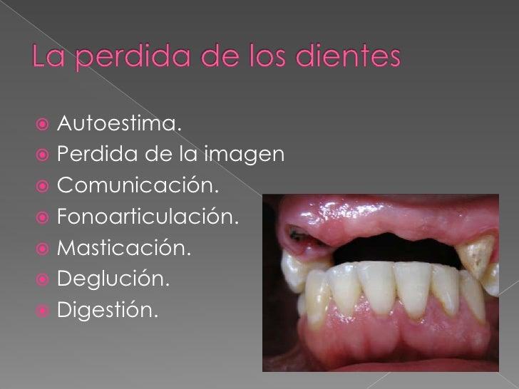 Dx prótesis total Slide 3