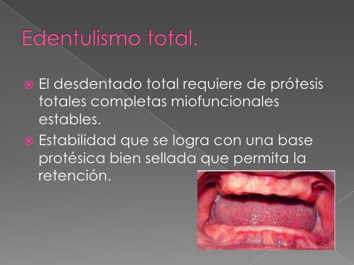 Dx prótesis total