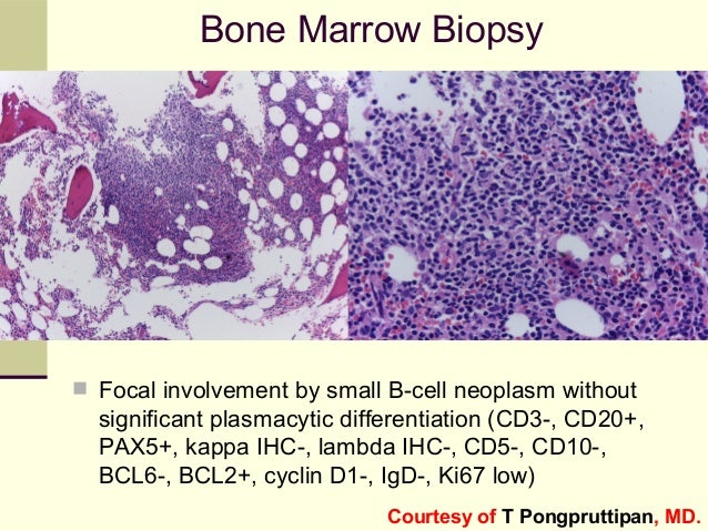 Bone Marrow Biopsy  Focal involvement by small B-cell neoplasm without significant plasmacytic differentiation (CD3-, CD2...
