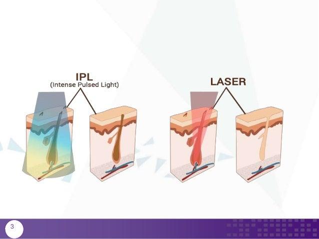 Χρήση της τεχνολογίας Έντονου Παλμικού Φωτός (IPL) και Laser για μόνι… f9f5dc8c648