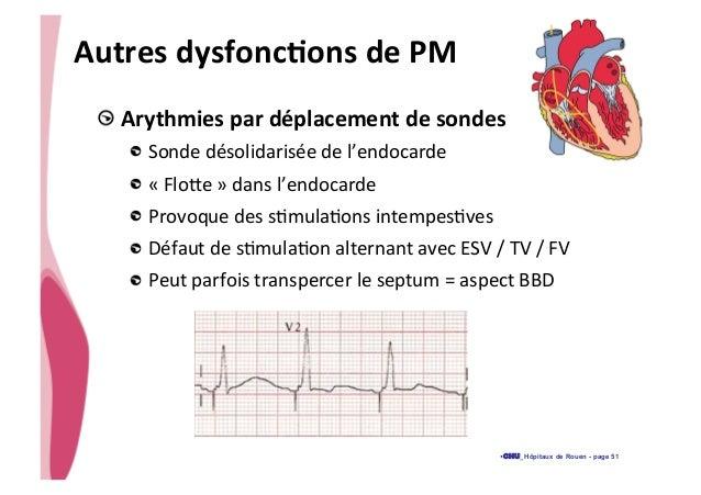 Dysfonction d'un pm urgences 2014 slideshare - 웹