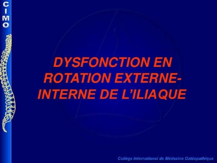 DYSFONCTION EN ROTATION EXTERNE-INTERNE DE L'ILIAQUE<br />