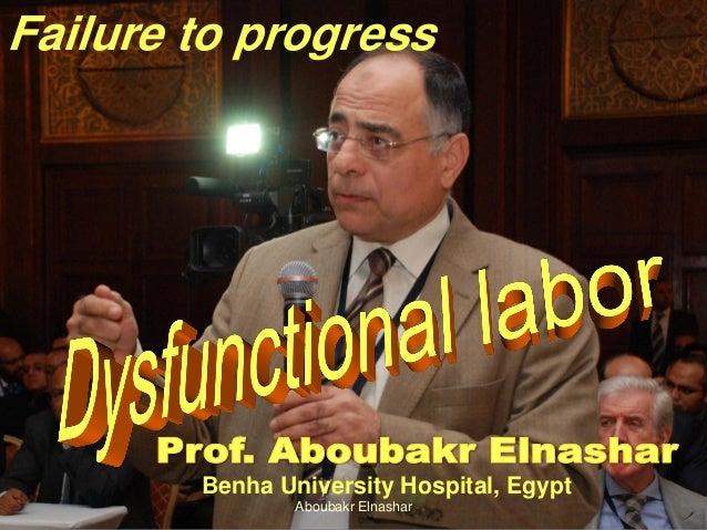 Failure to progress Benha University Hospital, Egypt Aboubakr Elnashar