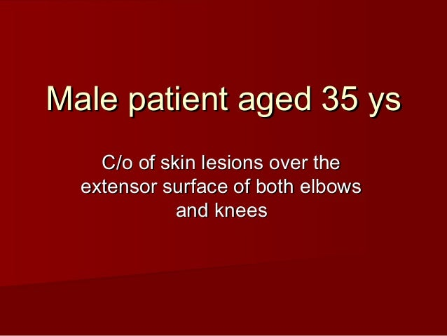 Male patient aged 35 ys    C/o of skin lesions over the  extensor surface of both elbows             and knees