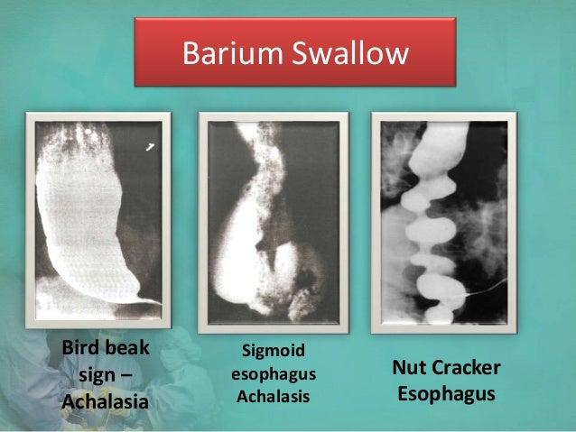 corrosive esophagitis steroid