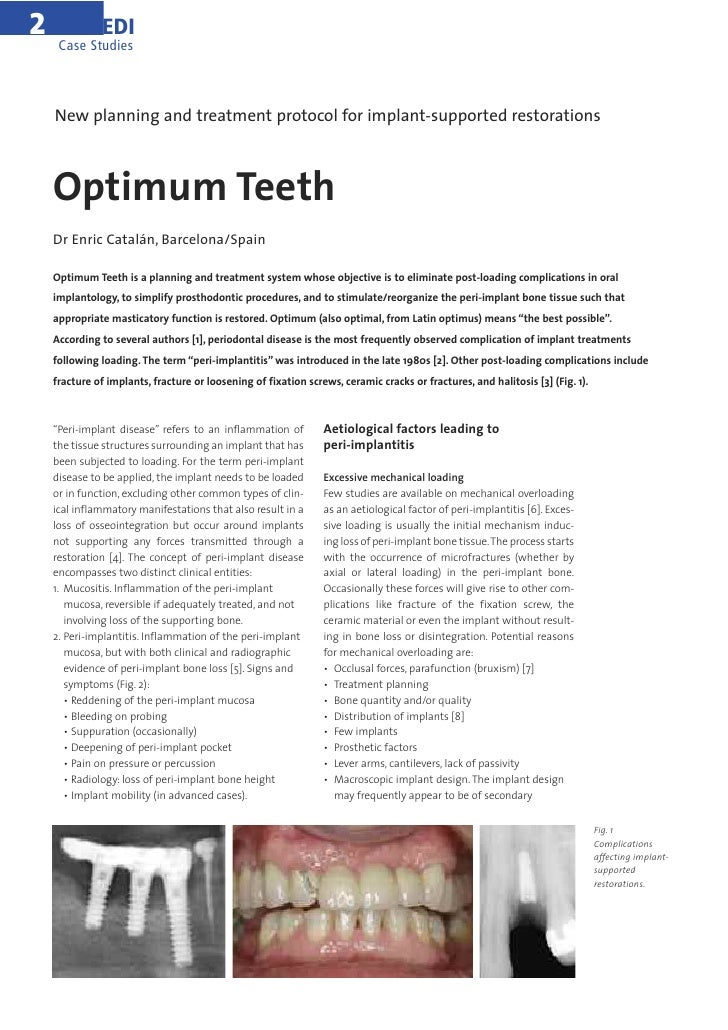 2             EDI     Case Studies    New planning and treatment protocol for implant-supported restorations    Optimum Te...