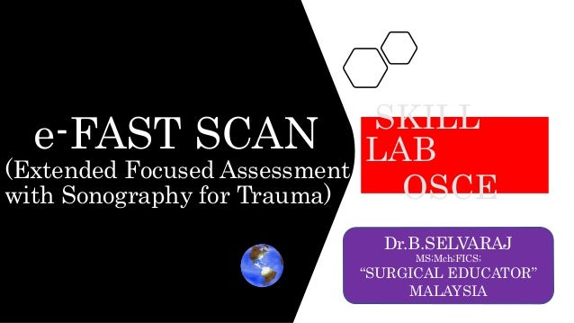 """e-FAST SCAN (Extended Focused Assessment with Sonography for Trauma) SKILL LAB OSCE Dr.B.SELVARAJ MS;Mch;FICS; """"SURGICAL E..."""